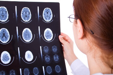 Traumatic Brain Injury Lawyer Texas
